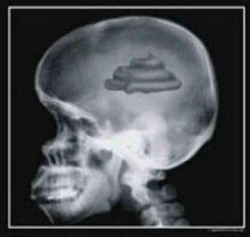 brain turd facebook user